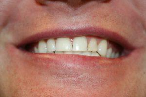A patient's smile prior to composite veneers.