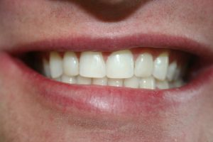 A patient's teeth after being treated with composite veneers.