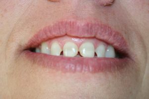 A woman's smile before being treated with composite veneers.