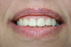 A patient after being treated with composite veneers.