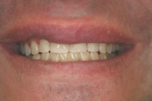 A man' s smile after adding composite veneers.