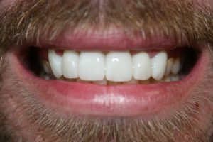 A greatly improved smile following dental crown treatments.